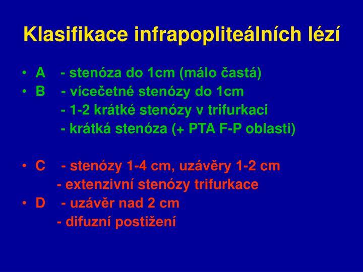 Klasifikace infrapopliteálních lézí