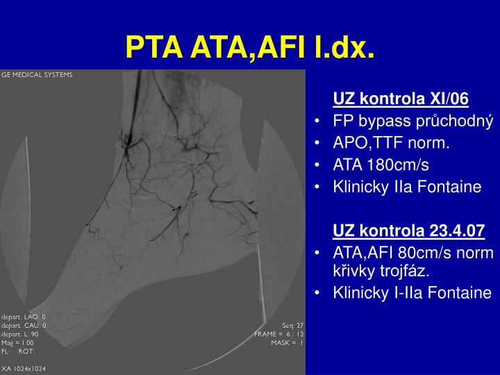 PTA ATA,AFI l.dx.