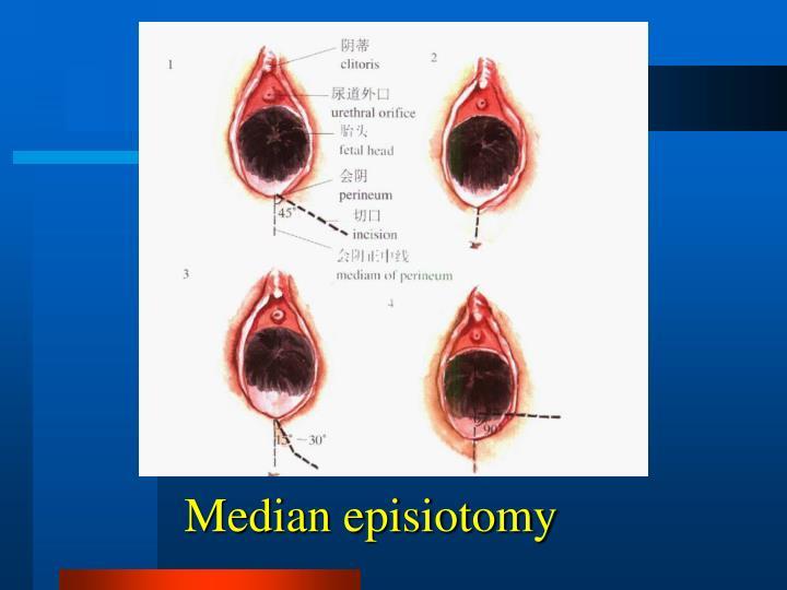 Median episiotomy