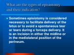 what are the types of episiotomy and their indication