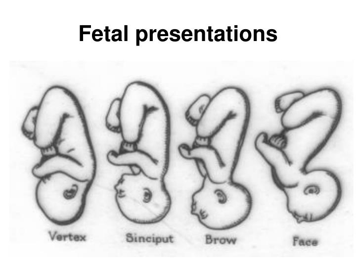 Fetal presentations