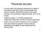 placental accreta