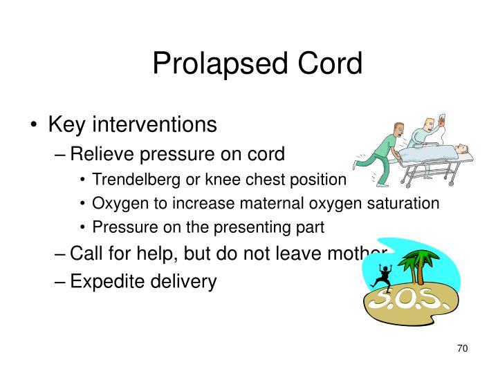 Prolapsed Cord