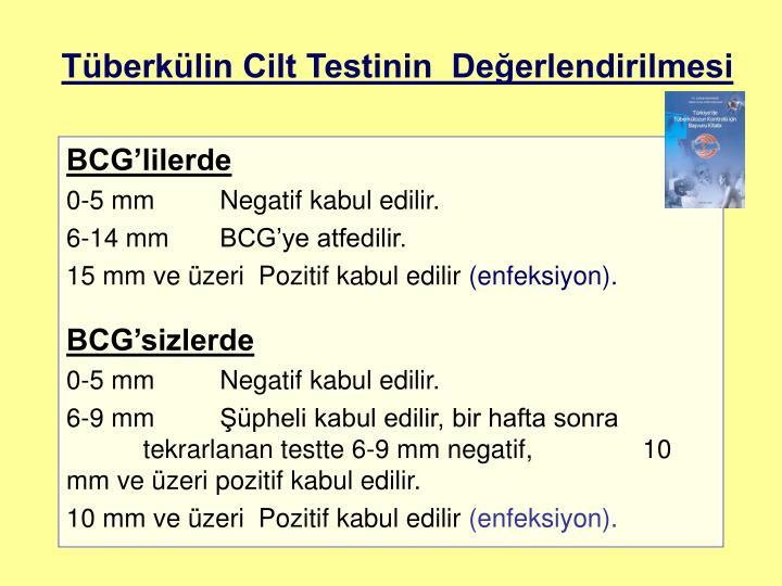 Tüberkülin Cilt Testinin  Değerlendirilmesi