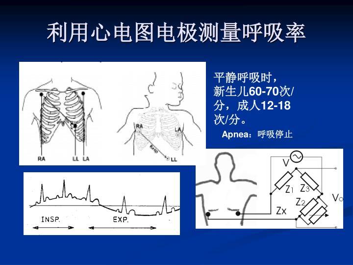 利用心电图电极测量呼吸率