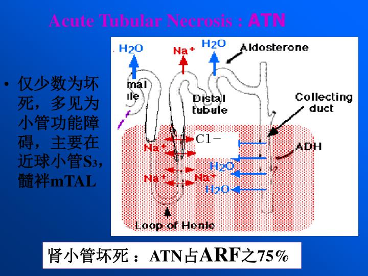 Acute Tubular Necrosis :