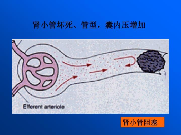 肾小管坏死、管型,囊内压增加