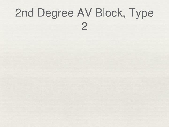 2nd Degree AV Block, Type 2