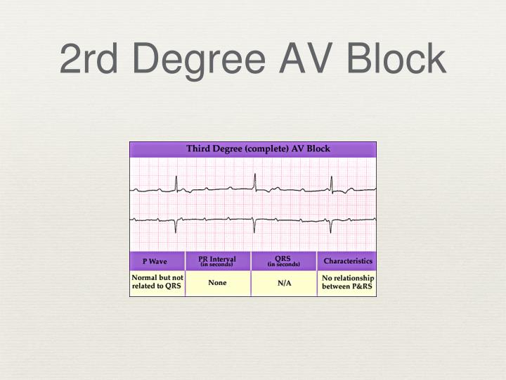 2rd Degree AV Block
