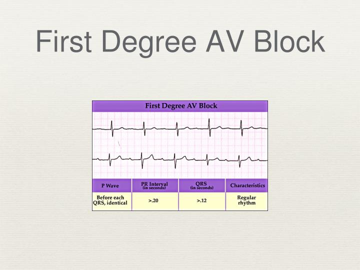 First Degree AV Block