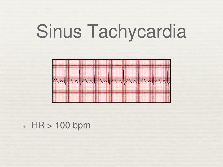 Sinus Tachycardia