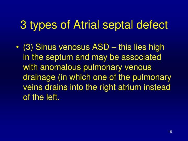 3 types of Atrial septal defect