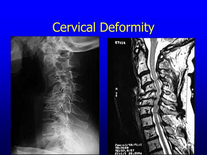Cervical Deformity