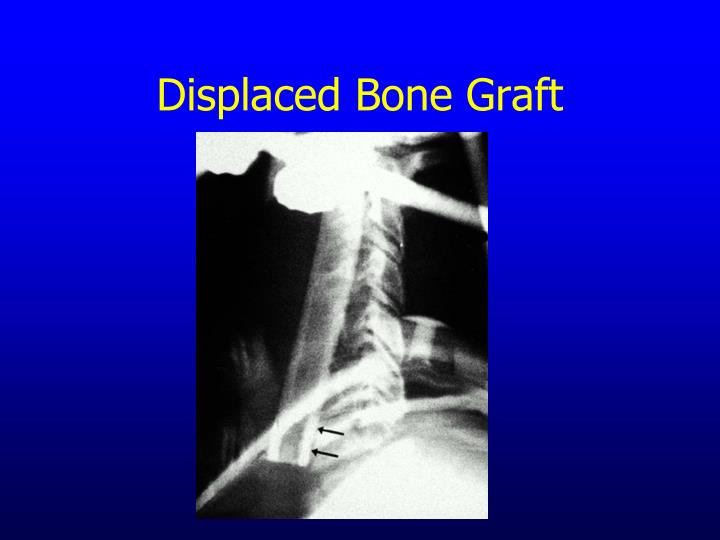 Displaced Bone Graft