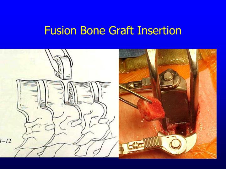 Fusion Bone Graft Insertion