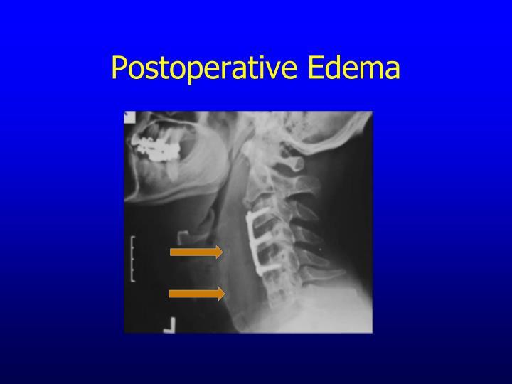 Postoperative Edema