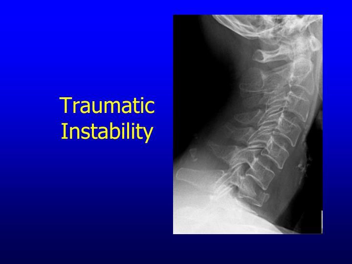 Traumatic Instability