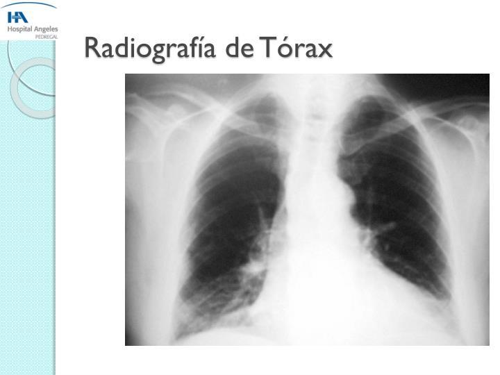 Radiografía de Tórax