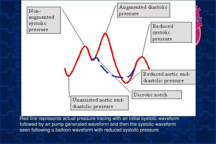 Red line represents actual pressure tracing with an initial systolic waveform followed by an pump generated waveform and then the systolic waveform seen following a balloon waveform with reduced systolic pressure