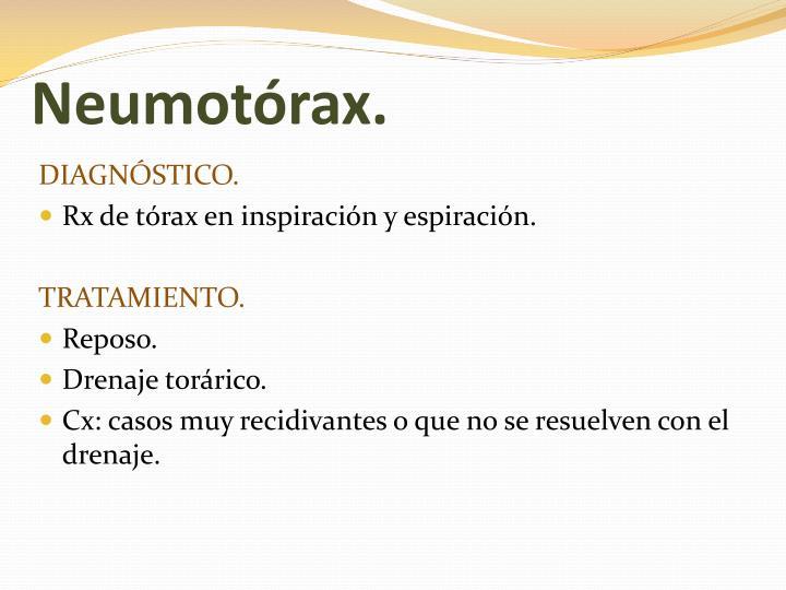 Neumotórax.