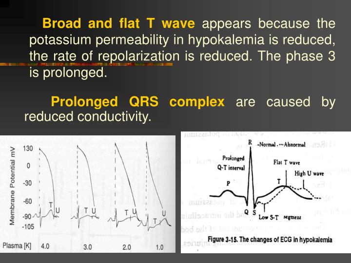 Broad and flat T wave