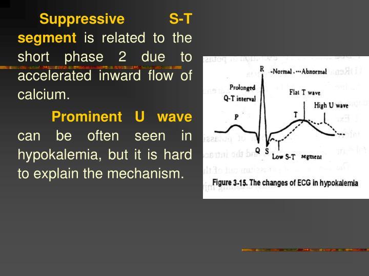 Suppressive S-T segment