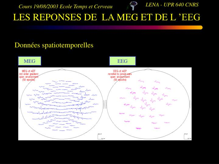LES REPONSES DE  LA MEG ET DE L'EEG