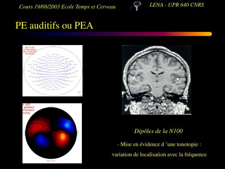 PE auditifs ou PEA