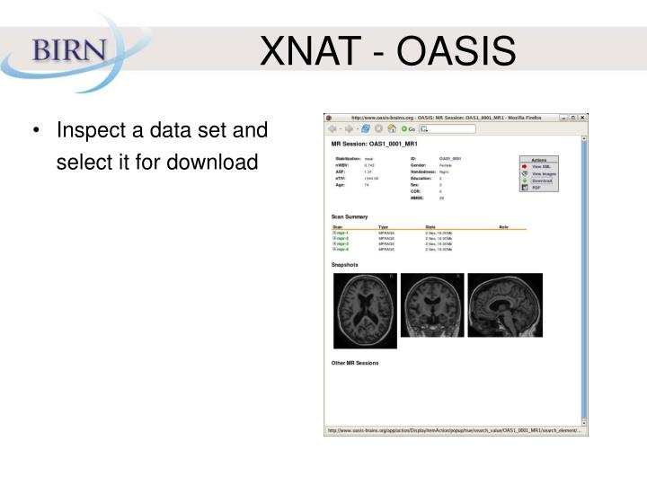 XNAT - OASIS