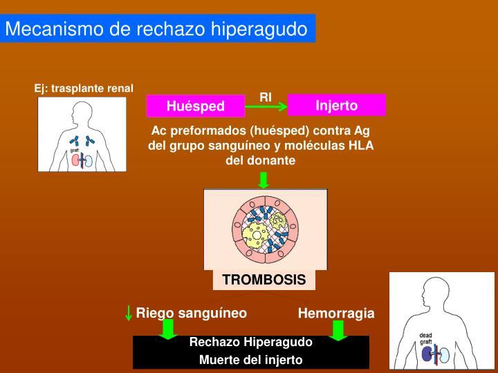 Ej: trasplante renal
