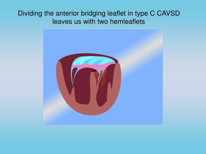 Dividing the anterior bridging leaflet in type C CAVSD