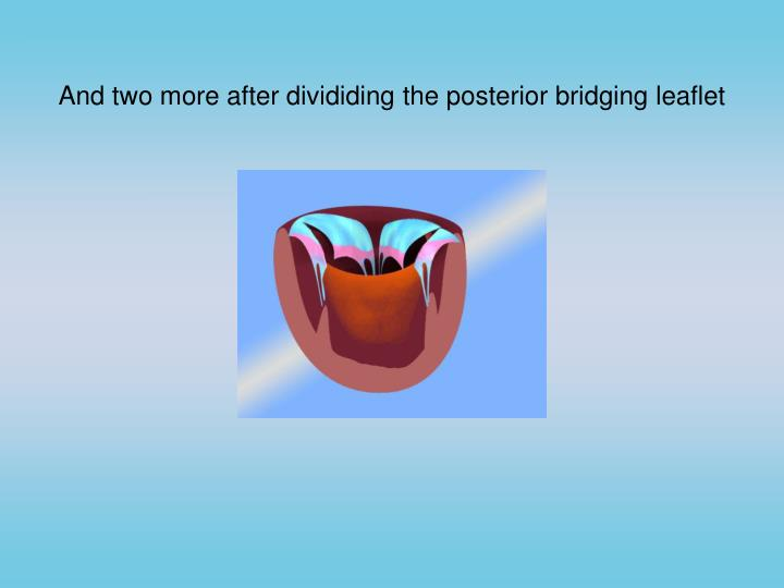 And two more after divididing the posterior bridging leaflet