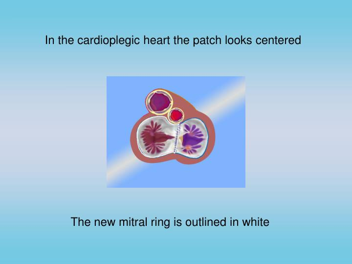 In the cardioplegic heart the patch looks centered