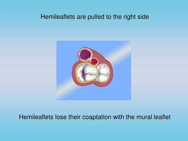 Hemileaflets are pulled to the right side