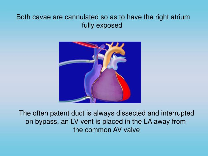 Both cavae are cannulated so as to have the right atrium