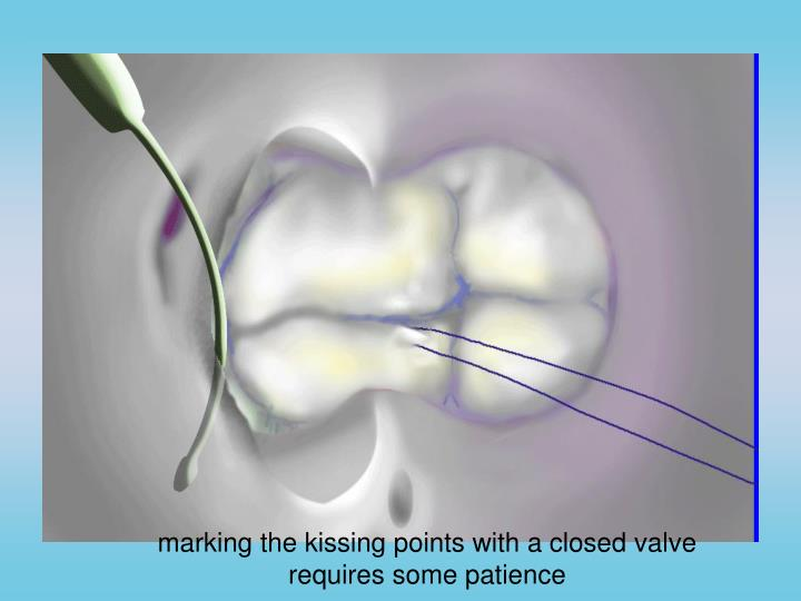 marking the kissing points with a closed valve