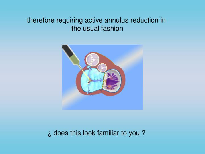 therefore requiring active annulus reduction in