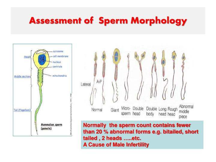 This awesome! causes of poor sperm morphology