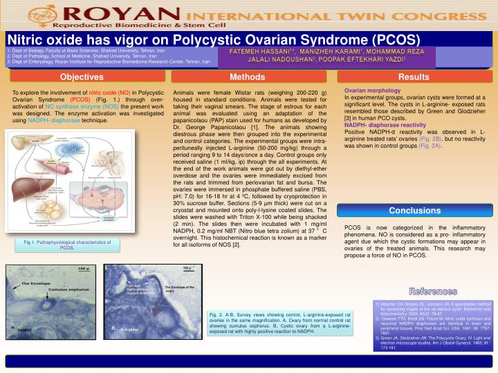 Nitric oxide has vigor on Polycystic Ovarian Syndrome (PCOS)