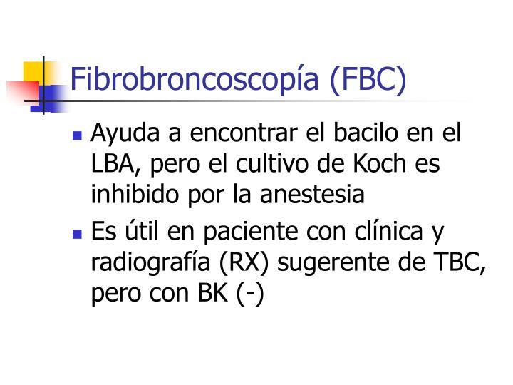 Fibrobroncoscopía (FBC)