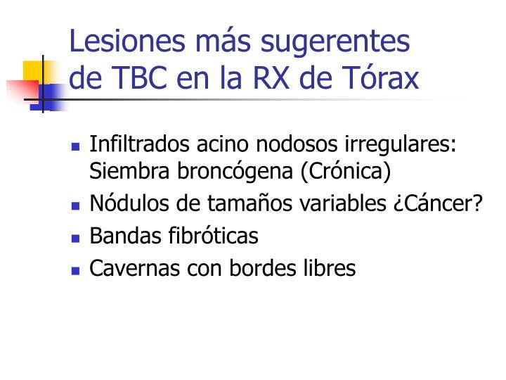 Lesiones más sugerentes      de TBC en la RX de Tórax