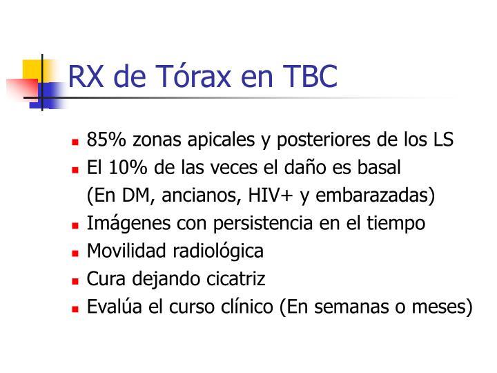 RX de Tórax en TBC