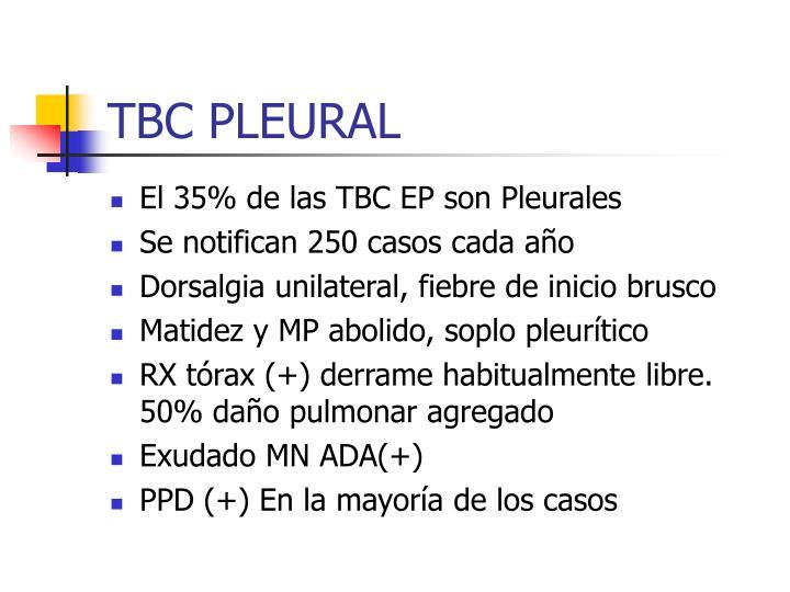TBC PLEURAL