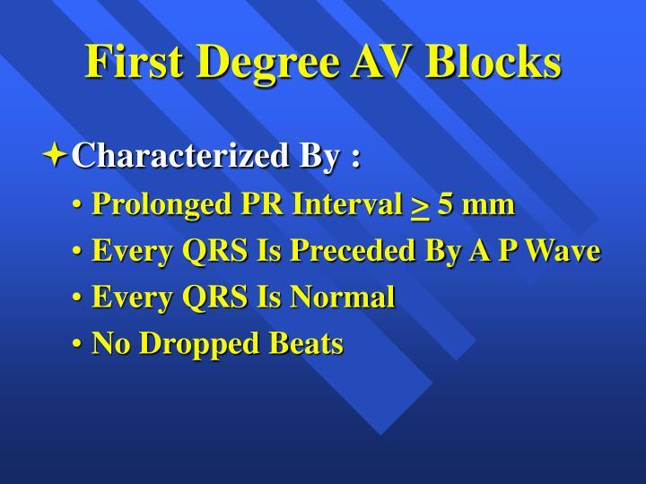 First Degree AV Blocks