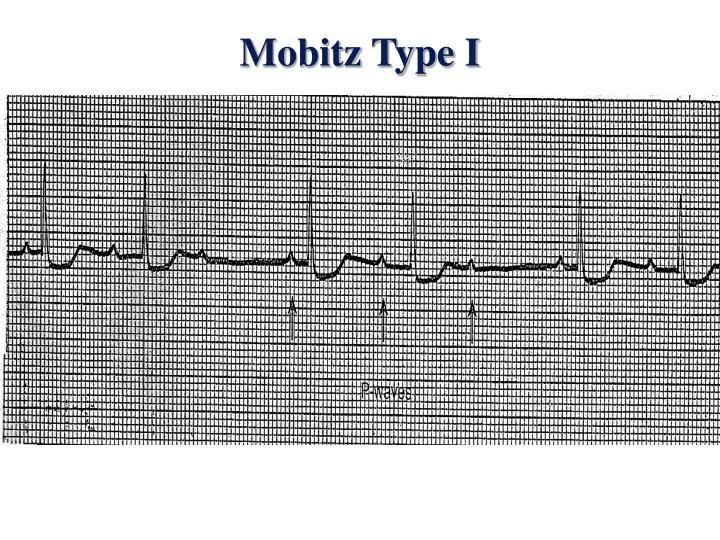 Mobitz Type I