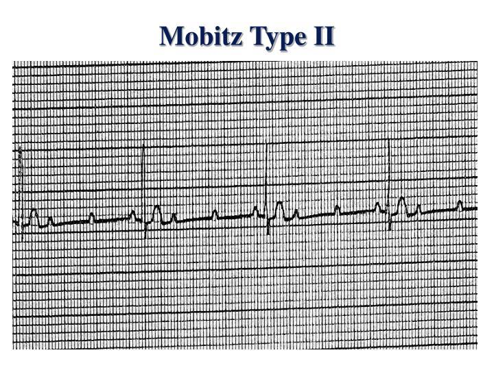 Mobitz Type II
