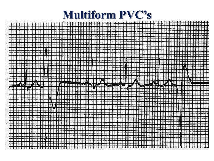 Multiform PVC's