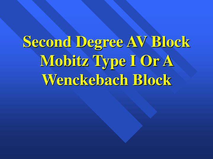 Second Degree AV Block Mobitz Type I Or A Wenckebach Block