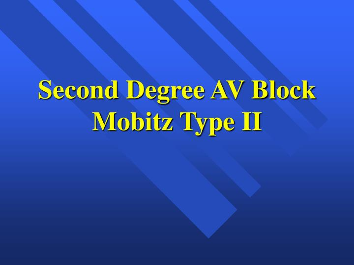 Second Degree AV Block Mobitz Type II
