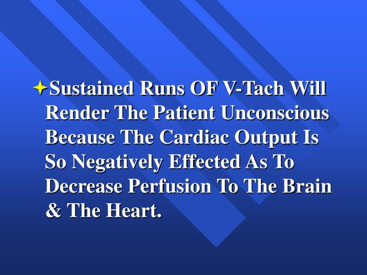 Sustained Runs OF V-Tach Will Render The Patient Unconscious Because The Cardiac Output Is So Negatively Effected As To Decrease Perfusion To The Brain & The Heart.